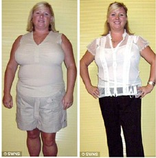 I lost weight with the Hypno-Band Gastric Band Hypnotherapy system